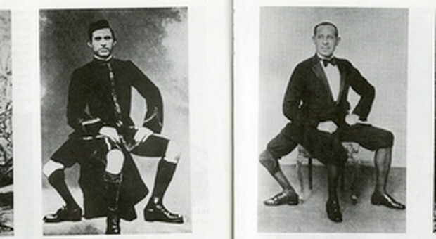 Lunico uomo al mondo con tre gambe: festa per frank in sicilia