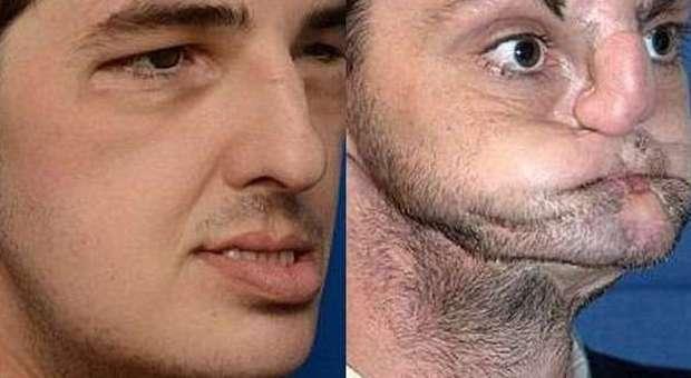 Trattamento di posti sui consigli di faccia di dermatologi