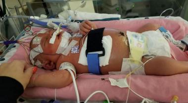 Meningite, neonata muore: Mariana, 18 giorni, ha contratto il virus dopo il bacio di un amico di famiglia