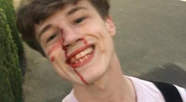 Massacrato di botte perché gay, lui posta la foto sorridente e scrive all'aggressore: «Ti auguro ogni bene»