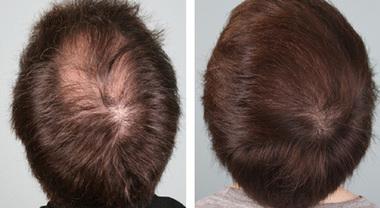 nuova cura capelli