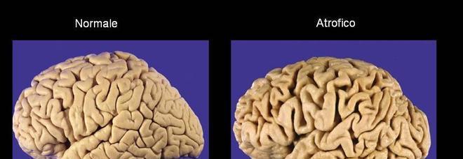 Cervello dei giovani alcol e droga danneggiano come l - Droga dei sali da bagno ...