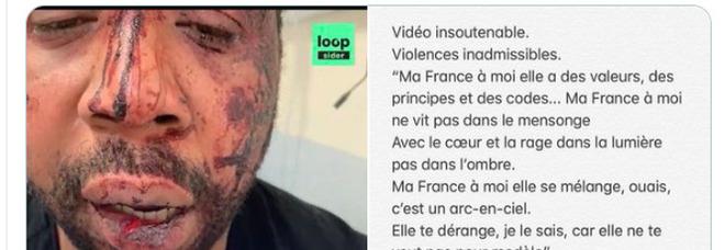 Quattro poliziotti picchiano un uomo di colore: incastrati da un video choc. Orrore e bufera in Francia: «Macron furioso»