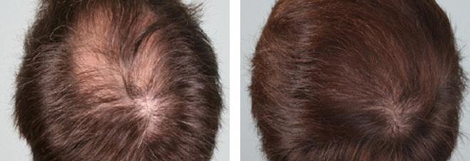 Rimedi per ricrescita capelli uomo