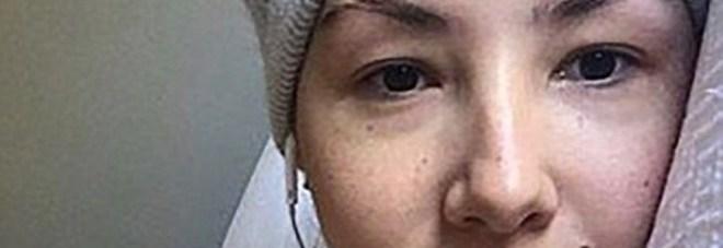 Tumore alle ovaie finto, guadagna 50 mila dollari con una raccolta fondi online: arrestata