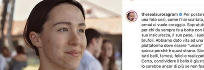 Aurora Ramazzotti, la foto coi brufoli fa boom di like: «Questa sono io, la perfezione non esiste». Mamma Michelle: «Sei bella dentro e fuori»