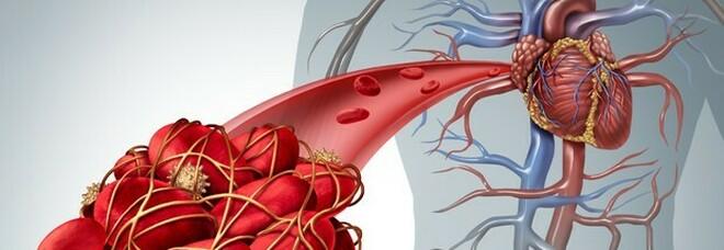 Astrazeneca, ecco le cura contro le trombosi: un mix di farmaci scioglie i coaguli di sangue