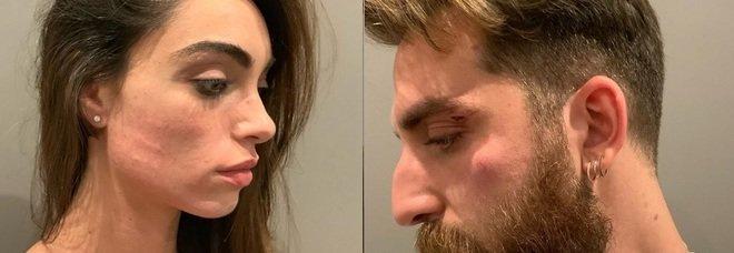 Lorella Boccia e Niccolò Presta aggrediti con un coltello e derubati, lo sfogo della showgirl su Instagram «Siete uomini di m**rda»