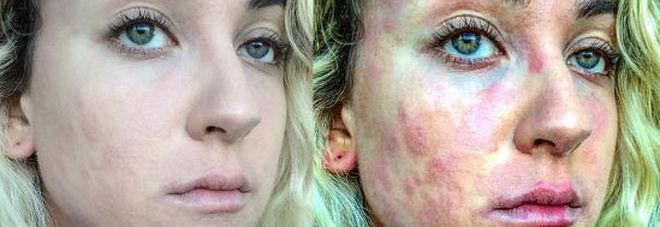 Maschere da posti per la persona a donne incinte