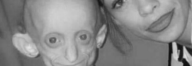 Malattia Benjamin Button, ragazza muore a 18 anni: per lei era come averne 144