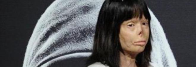 Valentina Pitzalis, la 27enne sfigurata dall'ex marito a Verissimo: «Ho bruciato per 20 minuti, speravo di morire»