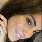 Giulia De Lellis e il primo piano con l'acne sui social: «Senza filtri è una storia diversa»