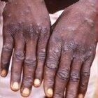 Il parere del virologo: «Malattia grave, morte in un paziente su 5»