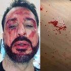 Fabrizio Corona revocati i domiciliari: lui si taglia i polsi, poi spacca il vetro dell'ambulanza e va fuori di sé con la polizia: «Andate via»