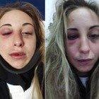 Ragazza picchiata dal fidanzato posta su Facebook le foto delle botte: «Così mi ha ridotto divertendosi»