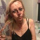 Picchiata dal fidanzato perché era uscita con gli amici: «Ho avuto paura di morire»