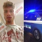 ESCLUSIVO/ Roma, denuncia choc di Marco: «Fermato e picchiato a sangue da un poliziotto in borghese»