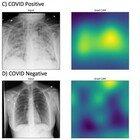 Studio delle Molinette: un'ecografia al polmone scopre la positività prima del tampone molecolare