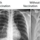 Covid, gli effetti sui polmoni in chi è vaccinato e chi no