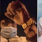 Temptation Island, Michael De Giorgio aggredito e ferito con delle forbici: «Entrate e uscite dal polso». La corsa in sala operatoria
