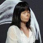 Valentina Pitzalis, il calvario della 27enne sfigurata dall'ex marito a Verissimo: «Ho bruciato per 20 minuti, speravo di morire»
