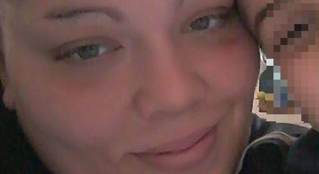 Dimenticano una garza nel suo addome giovane mamma muore al Loreto Mare