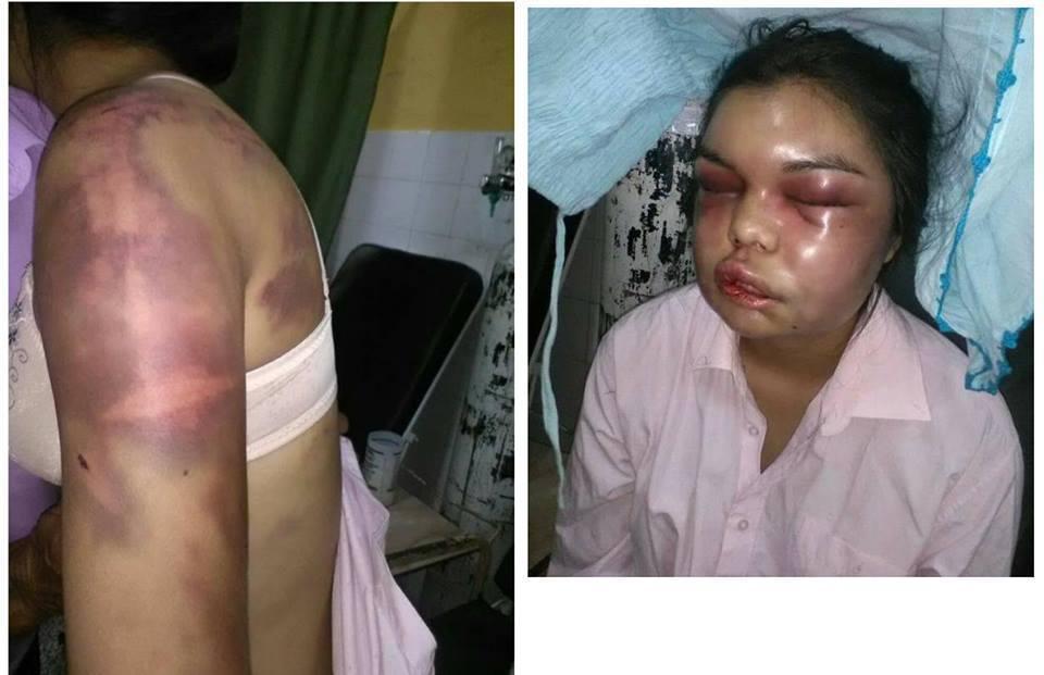 Massacrata dal marito per ogni like su Facebook