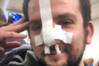Ubriaco semina il panico in centro: picchiato a sangue un giornalista