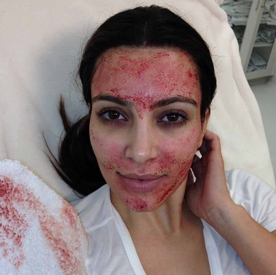 vampire_facial_kim_kardashian_malattia_infettiva_12141627.jpg